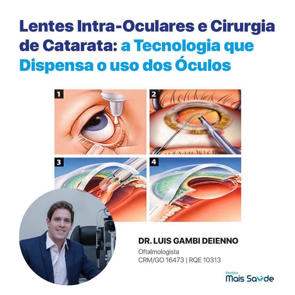 lentes-intraoculares-cirurgia-catarata
