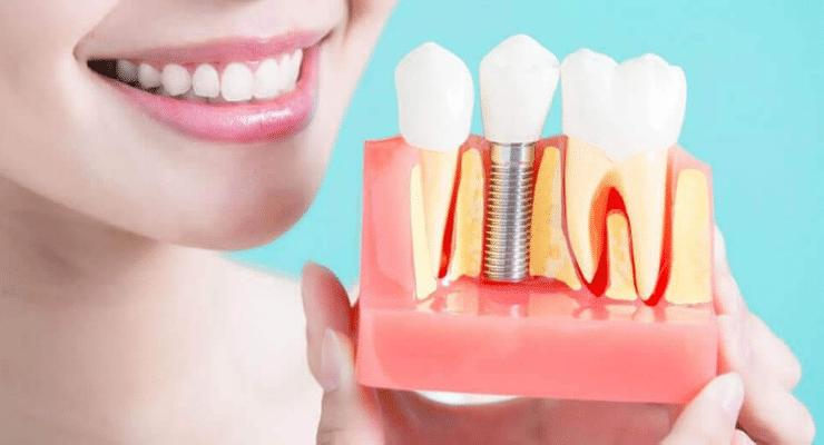 sonho-implante-dentario